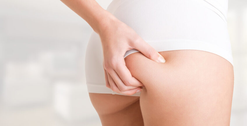 The top 10 foods to fight cellulite